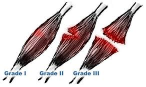 grade differences in muscle injury