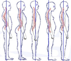 posture-types-view-spine